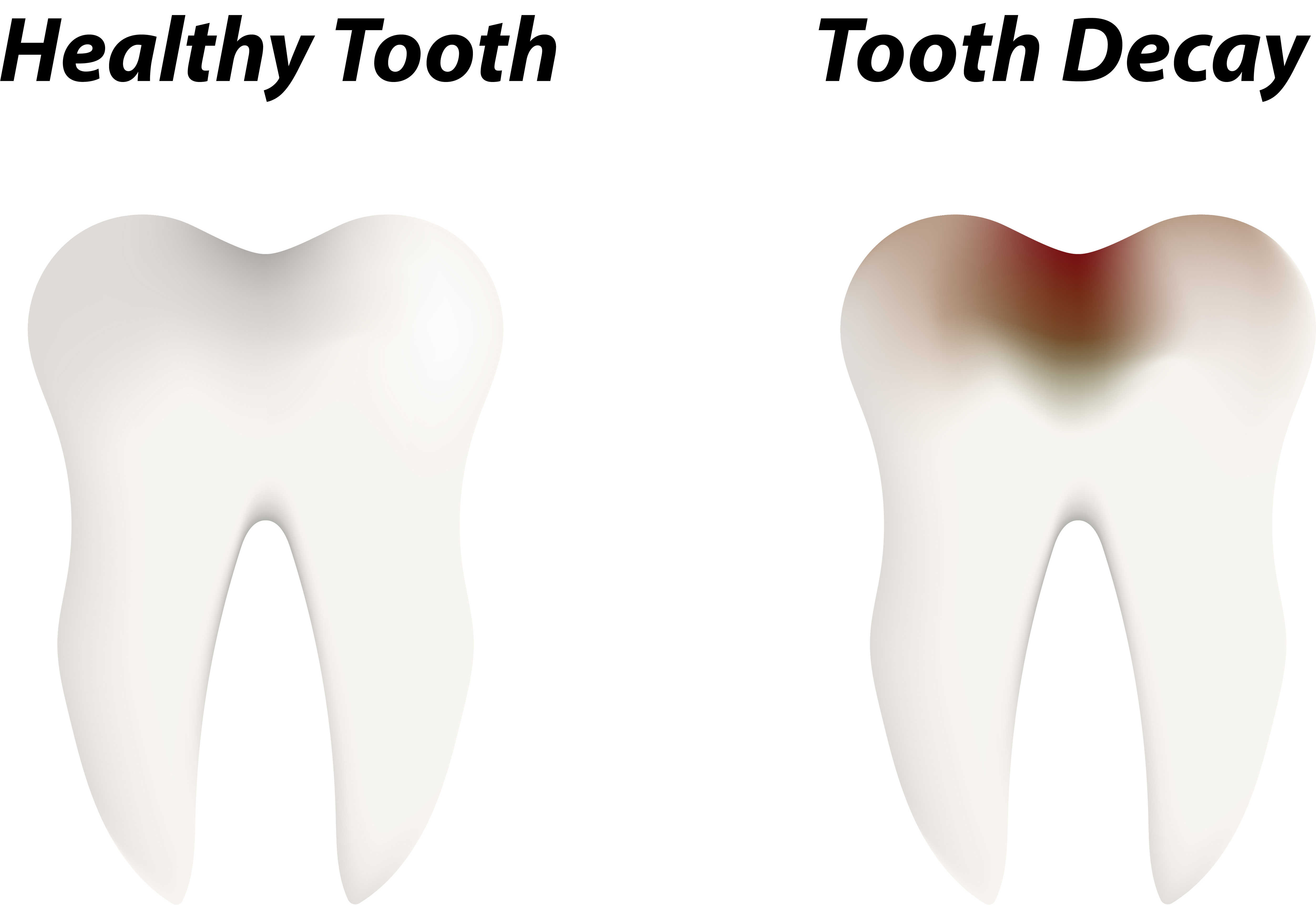 tooth decay riverside dental